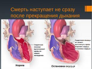 Смерть наступает не сразу после прекращения дыхания и остановки сердца.