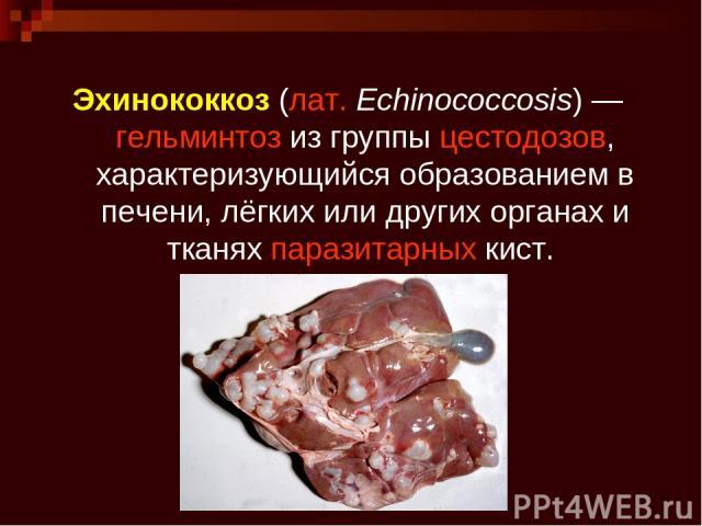 Эхинококкоз(лат.Echinococcosis)—гельминтозиз группыцестодозов, характеризующийся образованием в печени, лёгких или других органах и тканяхпаразитарныхкист.