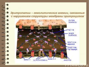 Эритропатии – гемолитические анемии, связанные с нарушением структуры мембраны э