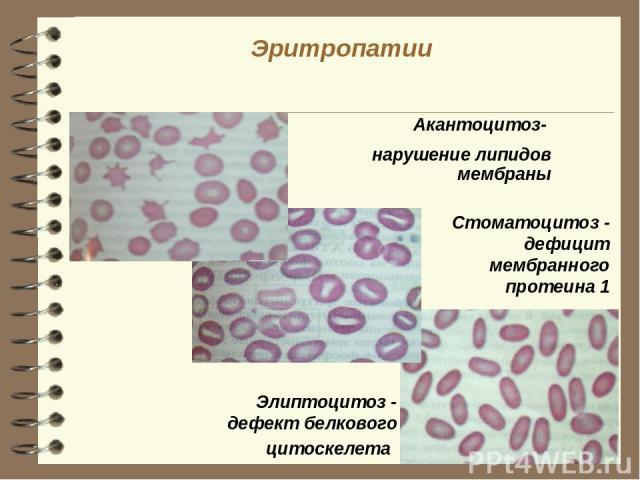 Эритропатии