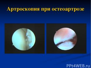 Артроскопия при остеоартрозе