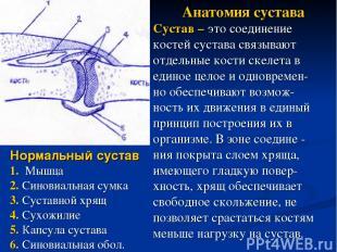 Нормальный сустав 1. Мышца 2. Синовиальная сумка 3. Суставной хрящ 4. Сухожилие