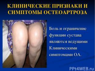 КЛИНИЧЕСКИЕ ПРИЗНАКИ И СИМПТОМЫ ОСТЕОАРТРОЗА Боль и ограничение функции сустава