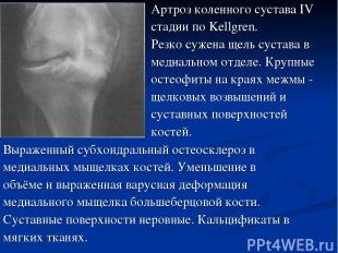 Выраженный субхондральный остеосклероз в медиальных мыщелках костей. Уменьшение