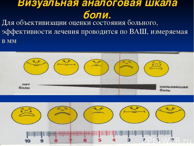 Визуальная аналоговая шкала боли. Для объективизации оценки состояния больного, эффективности лечения проводится по ВАШ, измеряемая в мм