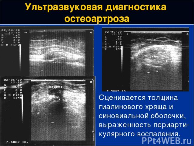 Ультразвуковая диагностика остеоартроза Оценивается толщина гиалинового хряща и синовиальной оболочки, выраженность периарти-кулярного воспаления.