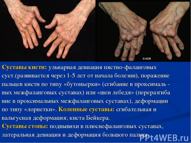 Суставы кисти: ульнарная девиация пястно-фаланговых суст.(развивается через 1-5 лет от начала болезни), поражение пальцев кисти по типу «бутоньерки» (сгибание в проксималь - ных межфаланговых суставах) или «шеи лебедя» (переразгиба ние в проксимальн…