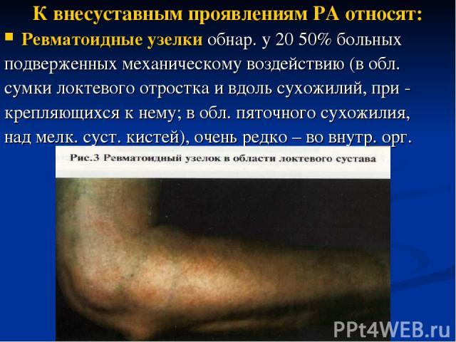 К внесуставным проявлениям РА относят: Ревматоидные узелки обнар. у 20 50% больных подверженных механическому воздействию (в обл. сумки локтевого отростка и вдоль сухожилий, при - крепляющихся к нему; в обл. пяточного сухожилия, над мелк. суст. кист…