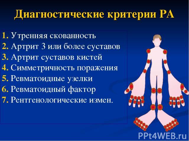 Диагностические критерии РА 1. Утренняя скованность 2. Артрит 3 или более суставов 3. Артрит суставов кистей 4. Симметричность поражения 5. Ревматоидные узелки 6. Ревматоидный фактор 7. Рентгенологические измен.