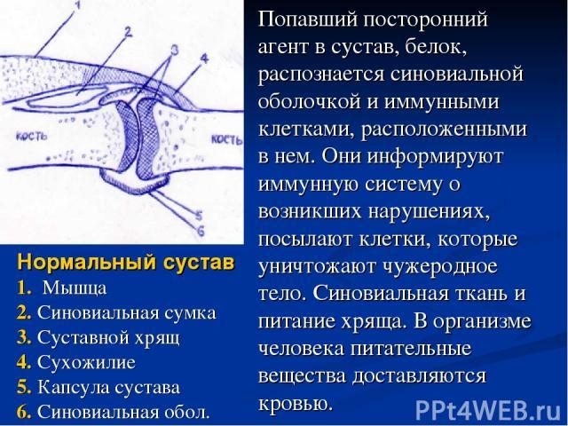 Нормальный сустав 1. Мышца 2. Синовиальная сумка 3. Суставной хрящ 4. Сухожилие 5. Капсула сустава 6. Синовиальная обол. Попавший посторонний агент в сустав, белок, распознается синовиальной оболочкой и иммунными клетками, расположенными в нем. Они …