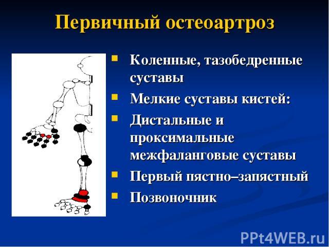 Первичный остеоартроз Коленные, тазобедренные суставы Мелкие суставы кистей: Дистальные и проксимальные межфаланговые суставы Первый пястно–запястный Позвоночник