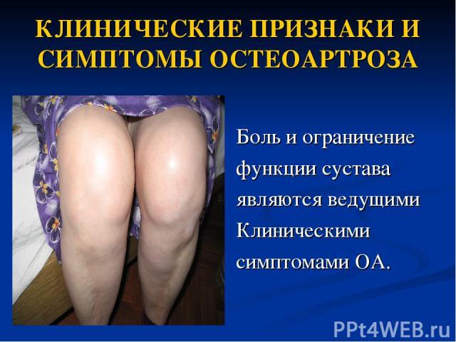 КЛИНИЧЕСКИЕ ПРИЗНАКИ И СИМПТОМЫ ОСТЕОАРТРОЗА Боль и ограничение функции сустава являются ведущими Клиническими симптомами OA.
