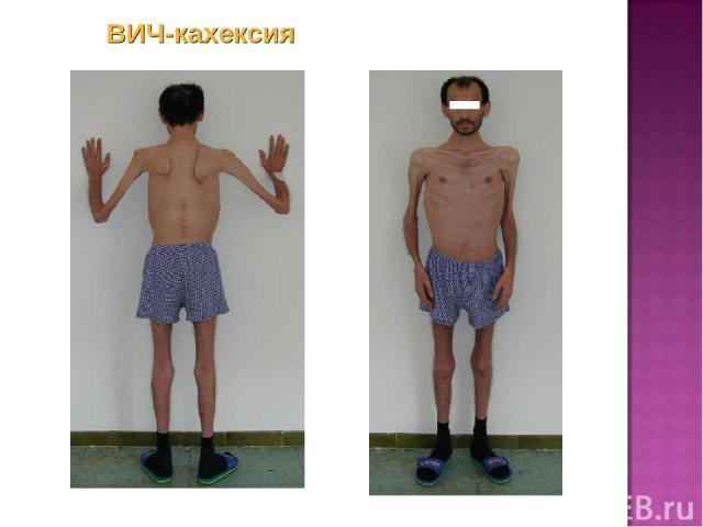 ВИЧ-кахексия