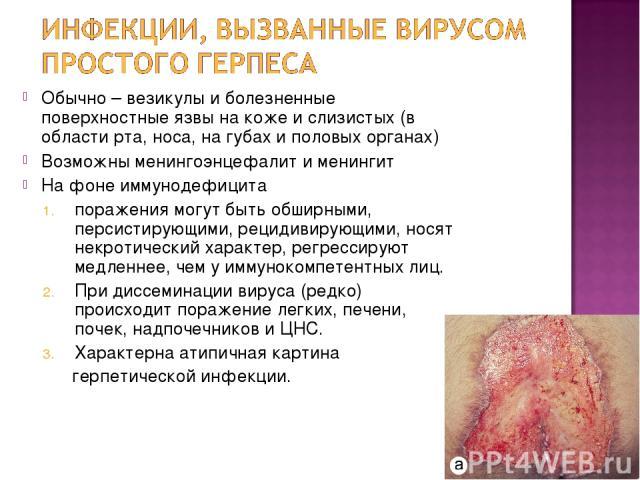 Обычно – везикулы и болезненные поверхностные язвы на коже и слизистых (в области рта, носа, на губах и половых органах) Возможны менингоэнцефалит и менингит На фоне иммунодефицита поражения могут быть обширными, персистирующими, рецидивирующими, но…