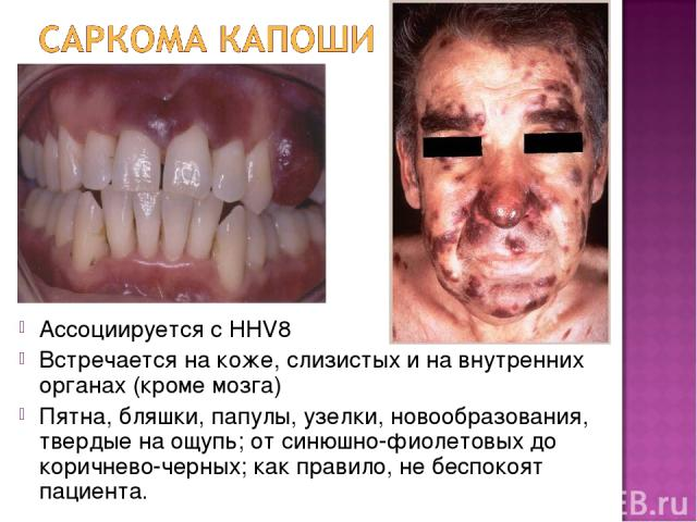 Ассоциируется с HHV8 Встречается на коже, слизистых и на внутренних органах (кроме мозга) Пятна, бляшки, папулы, узелки, новообразования, твердые на ощупь; от синюшно-фиолетовых до коричнево-черных; как правило, не беспокоят пациента.
