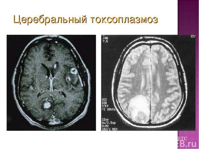 Из коллекции слайдов UCHSC AETC Церебральный токсоплазмоз