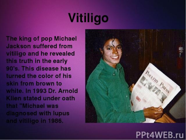The king of pop Michael Jackson suffered from vitiligo and he revealed this truth in the early 90's. This disease has turned the color of his skin from brown to white. In 1993 Dr. Arnold Klien stated under oath that