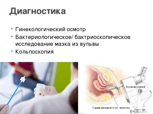 Гинекологический осмотр Бактериологическое/ бактриоскопическое исследование мазк