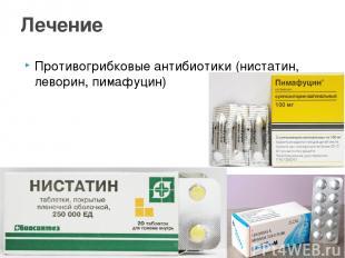Противогрибковые антибиотики (нистатин, леворин, пимафуцин) Лечение