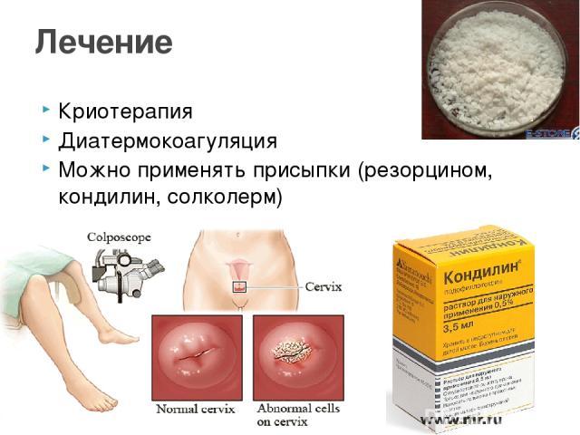 Криотерапия Диатермокоагуляция Можно применять присыпки (резорцином, кондилин, солколерм) Лечение