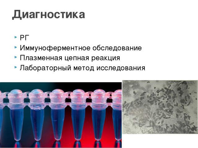 РГ Иммуноферментное обследование Плазменная цепная реакция Лабораторный метод исследования Диагностика