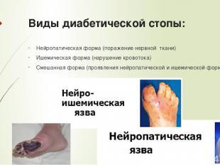 Виды диабетической стопы: Нейропатическая форма (поражение нервной ткани) Ишемич