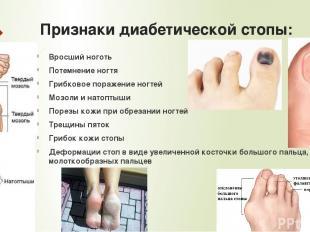 Признаки диабетической стопы: Вросший ноготь Потемнение ногтя Грибковое поражени