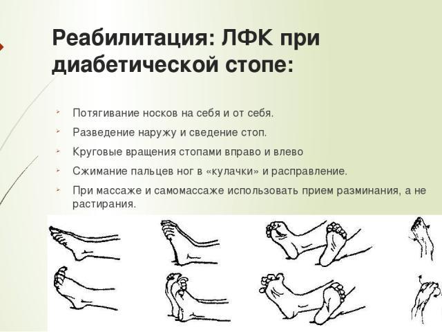 Реабилитация: ЛФК при диабетической стопе: Потягивание носков на себя и от себя. Разведение наружу и сведение стоп. Круговые вращения стопами вправо и влево Сжимание пальцев ног в «кулачки» и расправление. При массаже и самомассаже использовать прие…