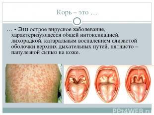 Корь – это … … - Это острое вирусное заболевание, характеризующееся общей интокс