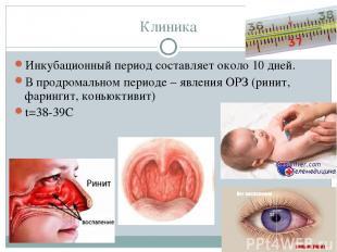 Клиника Инкубационный период составляет около 10 дней. В продромальном периоде –