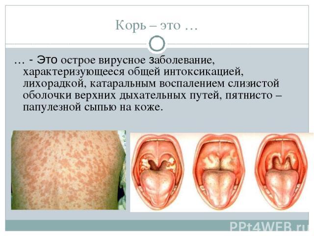 Корь – это … … - Это острое вирусное заболевание, характеризующееся общей интоксикацией, лихорадкой, катаральным воспалением слизистой оболочки верхних дыхательных путей, пятнисто – папулезной сыпью на коже.