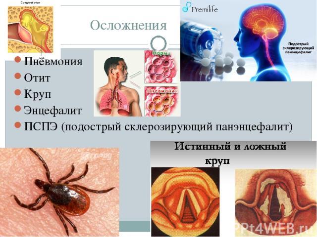 Осложнения Пневмония Отит Круп Энцефалит ПСПЭ (подострый склерозирующий панэнцефалит)
