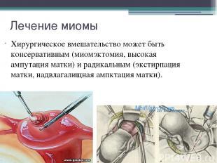 Лечение миомы Хирургическое вмешательство может быть консервативным (миомэктомия