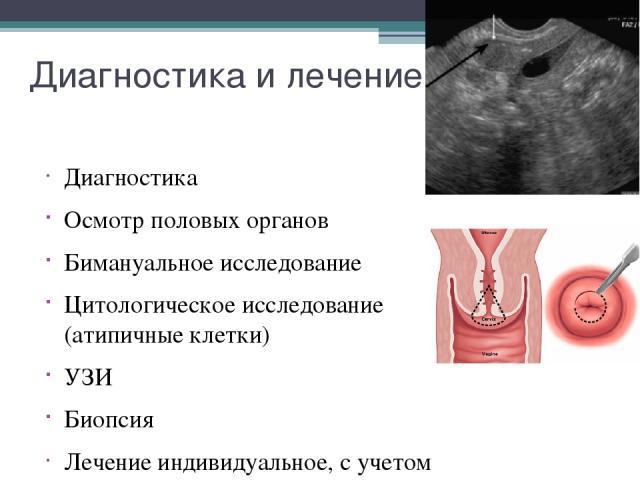 Диагностика и лечение Диагностика Осмотр половых органов Бимануальное исследование Цитологическое исследование (атипичные клетки) УЗИ Биопсия Лечение индивидуальное, с учетом стадии заболевания, возраст больной и формы опухоли.