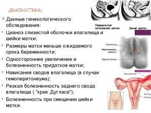 Данные гинекологического обследования: Цианоз слизистой оболочки влагалища и шей