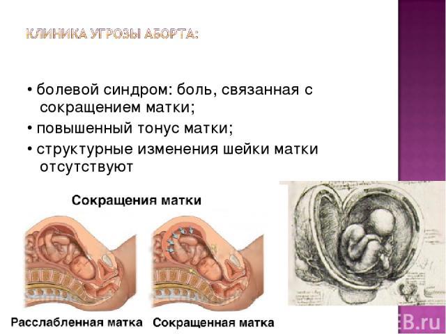 • болевой синдром: боль, связанная с сокращением матки; • повышенный тонус матки; • структурные изменения шейки матки отсутствуют