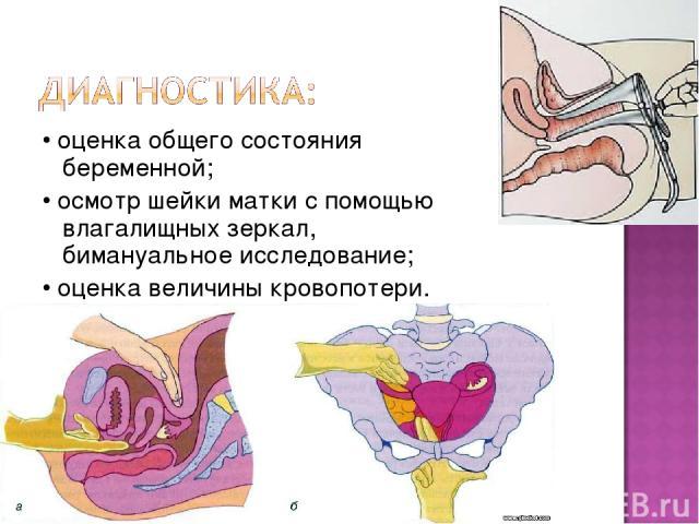 • оценка общего состояния беременной; • осмотр шейки матки с помощью влагалищных зеркал, бимануальное исследование; • оценка величины кровопотери.