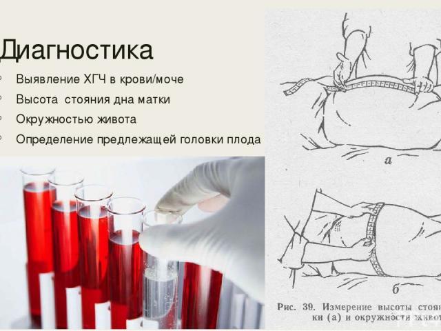 Диагностика Выявление ХГЧ в крови/моче Высота стояния дна матки Окружностью живота Определение предлежащей головки плода