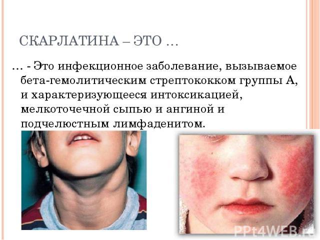 СКАРЛАТИНА – ЭТО … … - Это инфекционное заболевание, вызываемое бета-гемолитическим стрептококком группы А, и характеризующееся интоксикацией, мелкоточечной сыпью и ангиной и подчелюстным лимфаденитом.