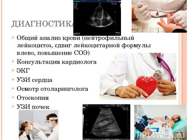 ДИАГНОСТИКА Общий анализ крови (нейтрофильный лейкоцитоз, сдвиг лейкоцитарной формулы влево, повышение СОЭ) Консультация кардиолога ЭКГ УЗИ сердца Осмотр отоларинголога Отоскопия УЗИ почек