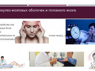 Туберкулез мозговых оболочек и головного мозга Расстройства сна Головные боли Рв
