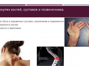 Туберкулез костей, суставов и позвоночника. Артрит (боль в пораженных суставах,