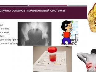 Туберкулез органов мочеполовой системы Нефрит Боль в спине Кровь в моче Дизурия