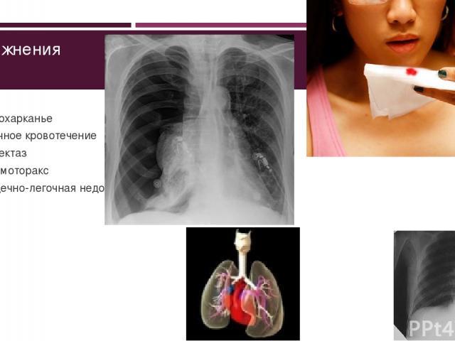 Осложнения Кровохарканье Легочное кровотечение Ателектаз Пневмоторакс Сердечно-легочная недостаточность