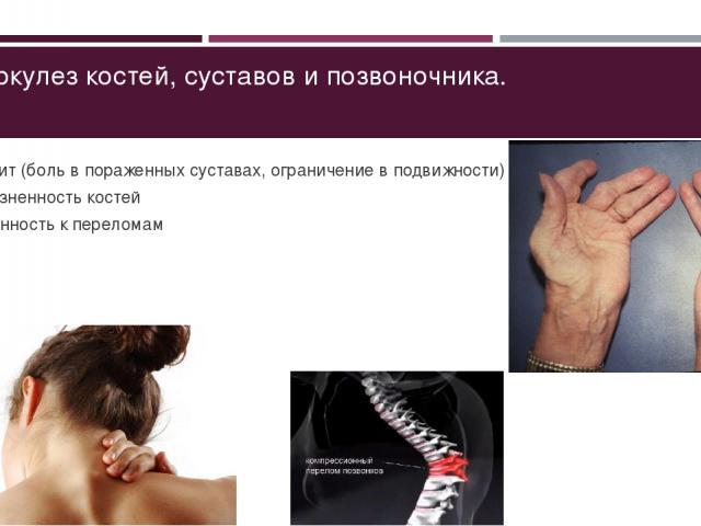 Туберкулез костей, суставов и позвоночника. Артрит (боль в пораженных суставах, ограничение в подвижности) Болезненность костей Склонность к переломам