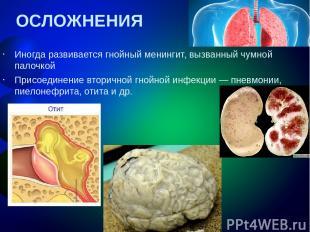 ОСЛОЖНЕНИЯ Иногда развивается гнойный менингит, вызванный чумной палочкой Присое