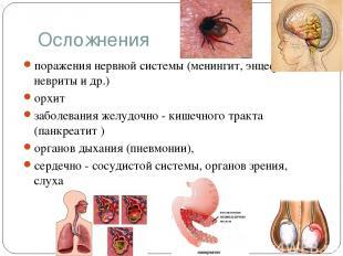 Осложнения поражения нервной системы (менингит, энцефалит, невриты и др.) орхит