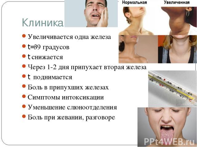 Клиника Увеличивается одна железа t=39 градусов t снижается Через 1-2 дня припухает вторая железа t поднимается Боль в припухших железах Симптомы интоксикации Уменьшение слюноотделения Боль при жевании, разговоре
