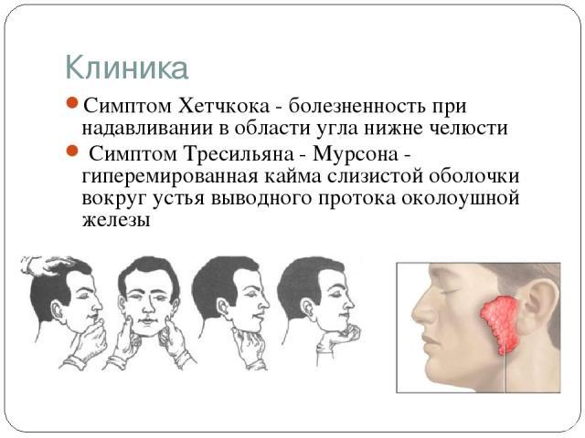 Клиника Симптом Хетчкока - болезненность при надавливании в области угла нижне челюсти Симптом Тресильяна - Мурсона - гиперемированная кайма слизистой оболочки вокруг устья выводного протока околоушной железы