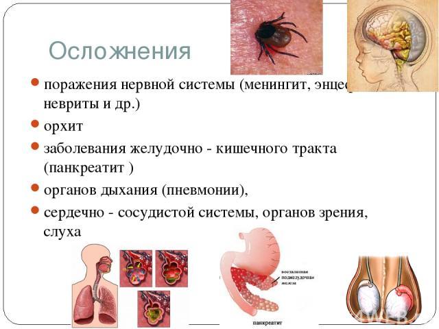 Осложнения поражения нервной системы (менингит, энцефалит, невриты и др.) орхит заболевания желудочно - кишечного тракта (панкреатит ) органов дыхания (пневмонии), сердечно - сосудистой системы, органов зрения, слуха